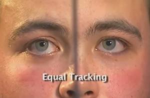 HGN Eye Test for DUI